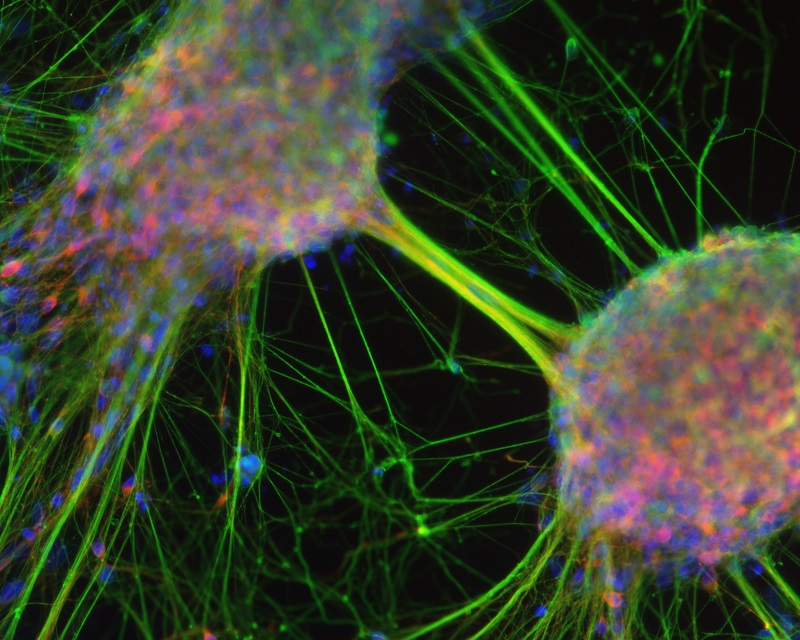 Reverse stem cell decline. Human stem cells forming mature neurons.