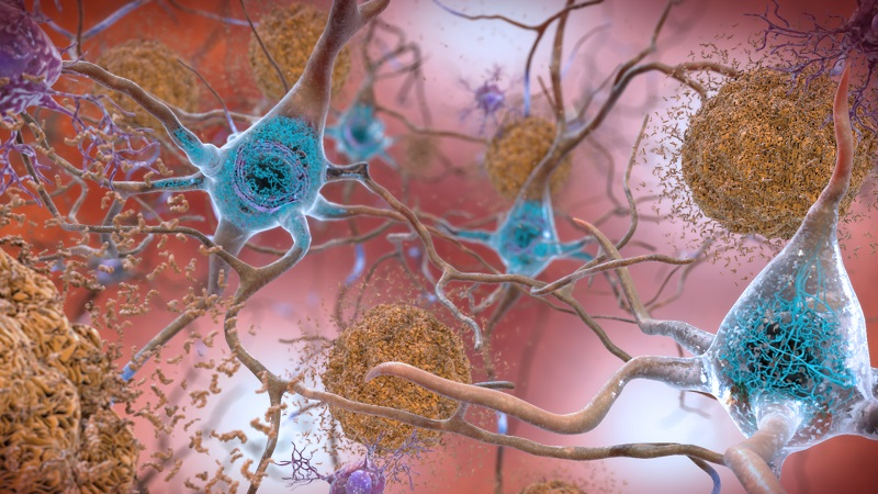 To prevent Alzheimer's researchers are addressing the troublemaking beta-amyloid plaques and tau in aging brain cells.