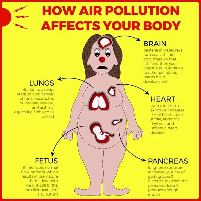 Health effects of air pollution.