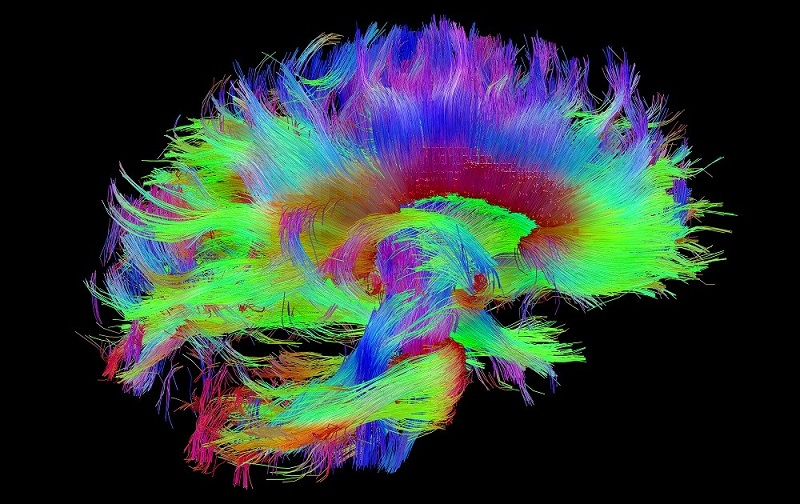 Scientists use brain mapping to find Parkinsons treatment.
