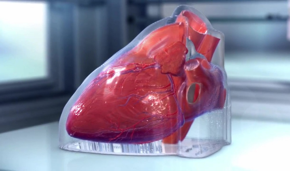 bioprinted Heart grown from stem cells